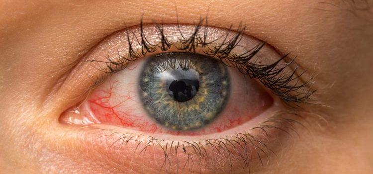 Alergia Ocular